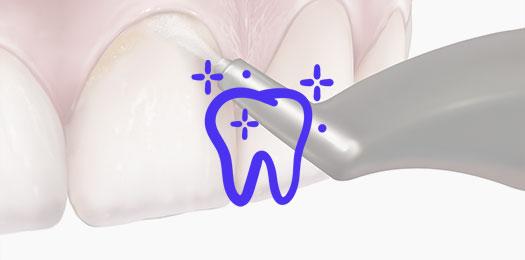 Стоимость профессиональной чистки зубов