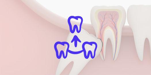 Цены на удаления зубов