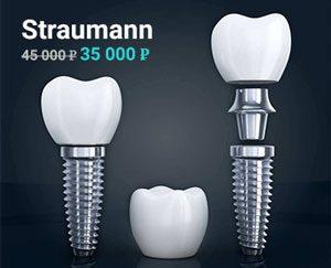 Акция на швейцарские импланты Straumann