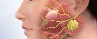 Слюннокаменная болезнь