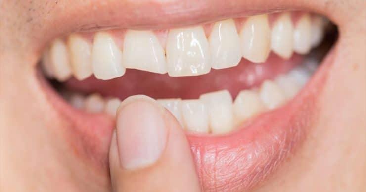 Травмы зуба (перелом зуба)