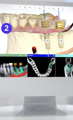 3D моделирование перед имплантацией