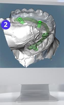 all-on-4 3d моделирование - cad