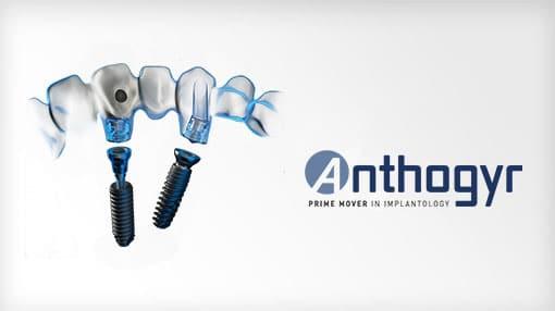 Имплантаты Anthogyr