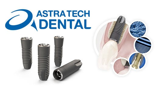 Имплантаты Аstra Tech