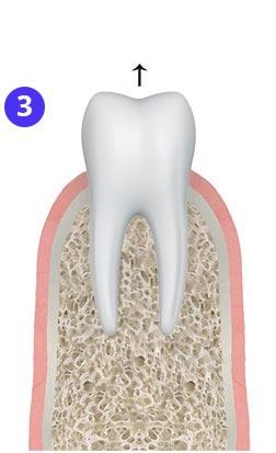 Анестезия + удаление зуба