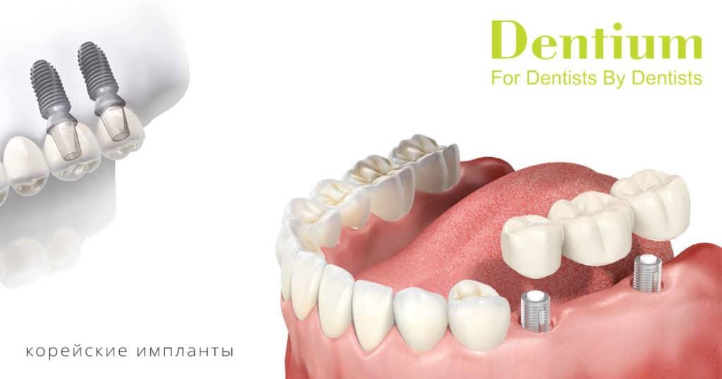 имплантация зубов под ключ дентиум