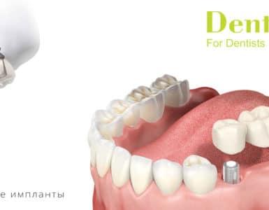 импланты дентиум
