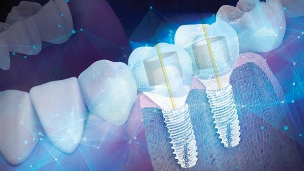 имплантаты dentium корея