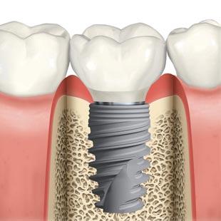 лазерная имплантация зубов стоимость