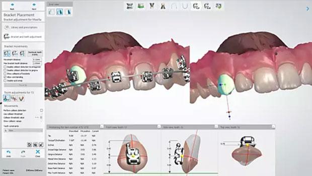 сканирование зубов при исправлении прикуса