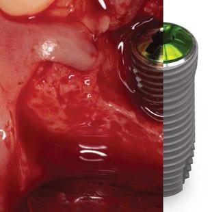 одномоментная имплантация зубов этапы