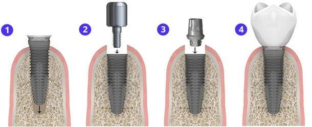 имплантация зубов скидки