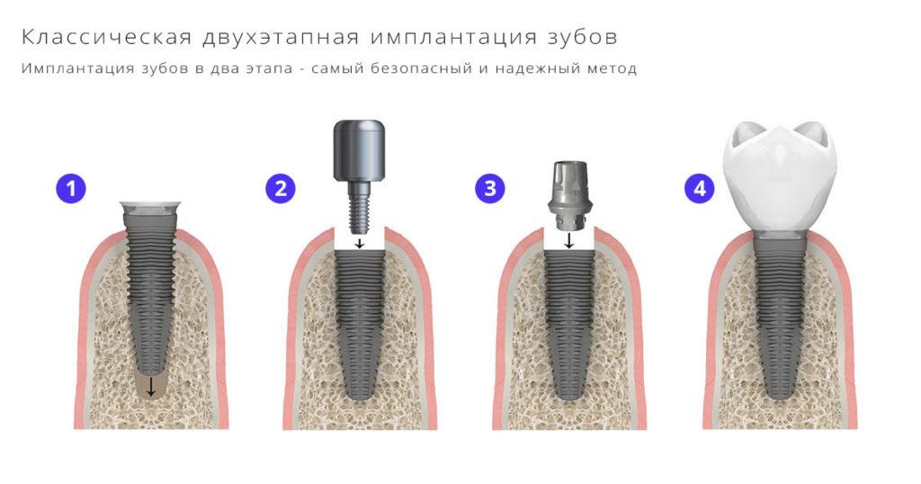 Классическая имплантация зубов под ключ