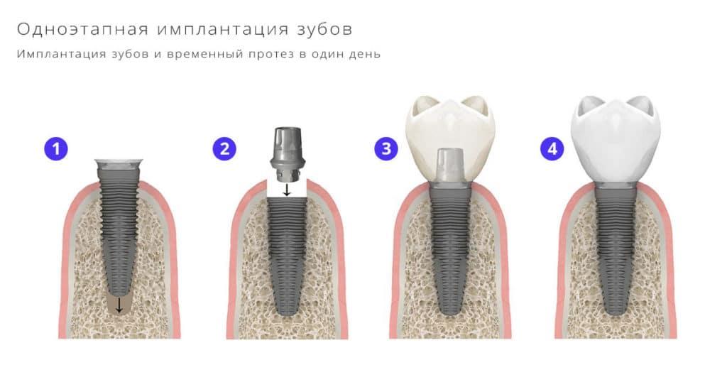 Одноэтапная имплантация зубов под ключ