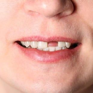 покозания к одноэтапной имплантации зубов
