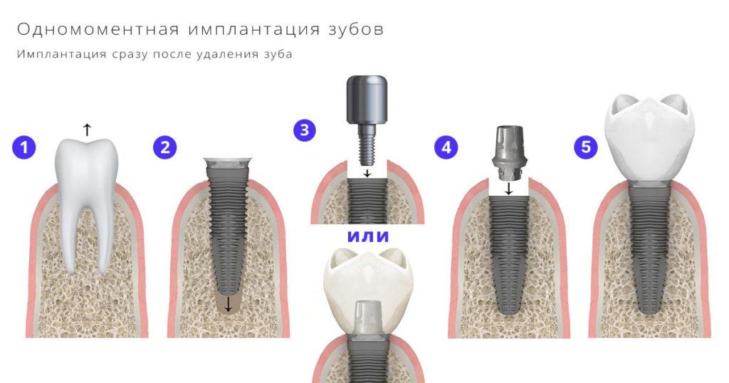 Одномоментная имплантация зубов под ключ