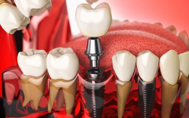 Виды одномоментной имплантации зубов