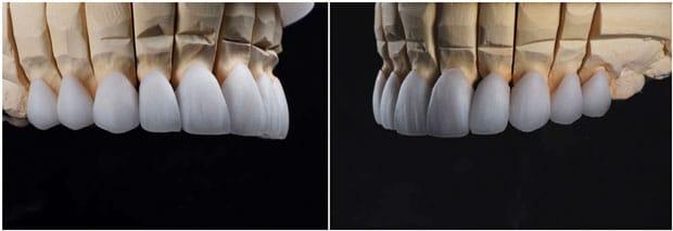 керамические коронки emax