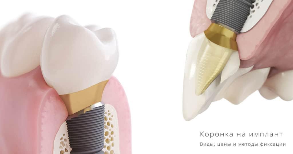Коронка на имплант при имплантации зубов под ключ