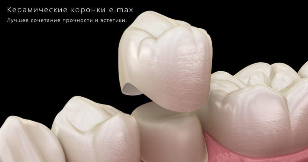 керамическая коронка e.max