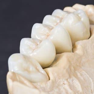 зубные коронки из циркония что это такое