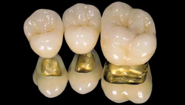 металлокерамическая коронка на основе драгоценных металов