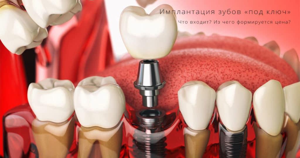 имплантация зубов в москве акции под ключ