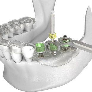 хирургический шаблон для имплантации