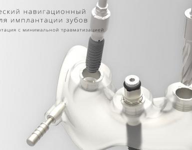 хирургический шаблон для имплантации зубов