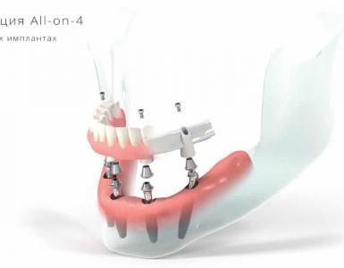 All-on-4 имплантация
