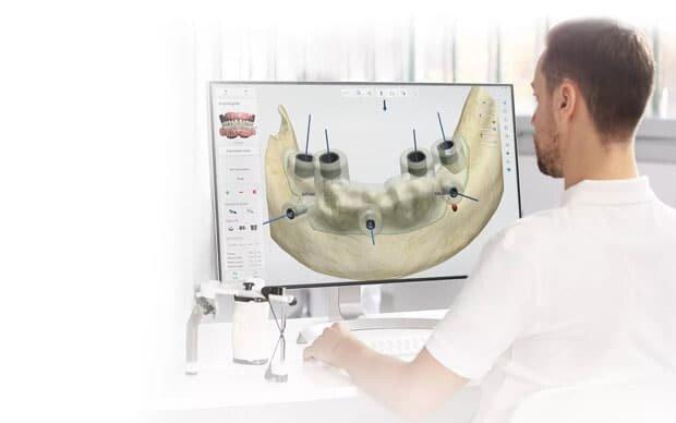 изготовление хирургических шаблонов