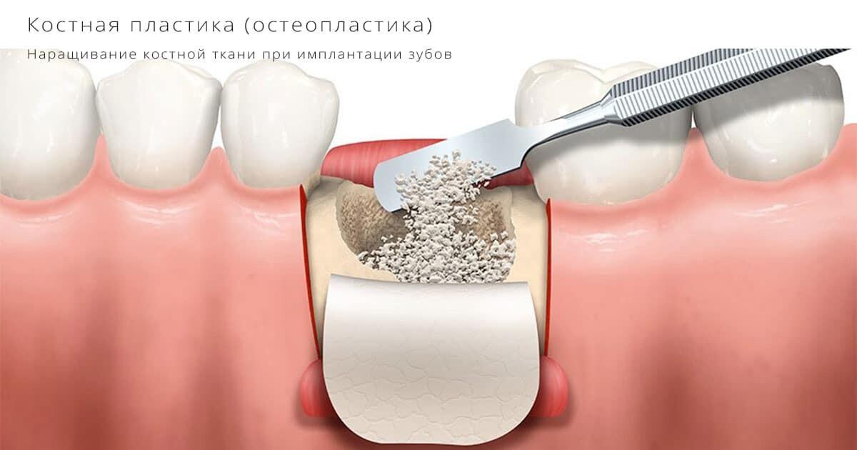 Наращивание костной ткани при имплантации зубов - Статьи