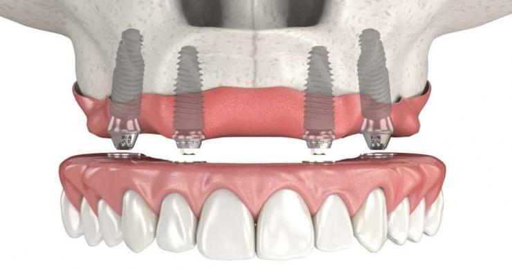 Полная имплантация всех зубов