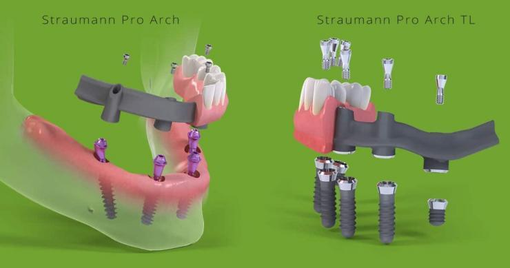 Straumann Pro Arch имплантация всей челюсти