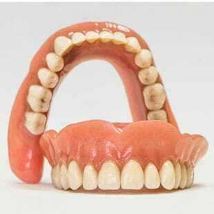 Альтернативы имплантация всех зубов верхней челюсти