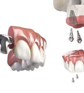 имплантация всех зубов верхней челюсти
