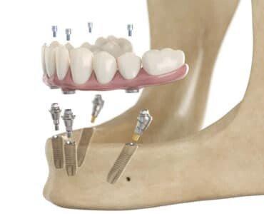Имплантация всех зубов на нижней челюсти