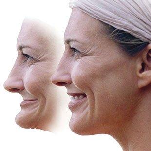 Последствия отсутствия зубов на верхней челюсти