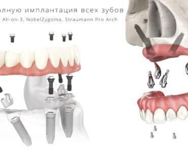 полная имплантация зубов цена