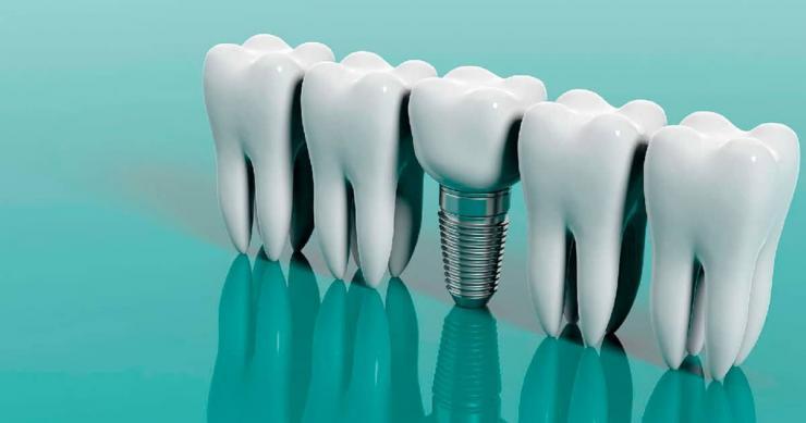 Бескровная имплантация зубов