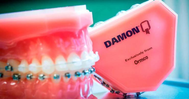 Брекет Damon