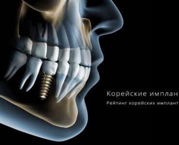 корейские импланты зубов