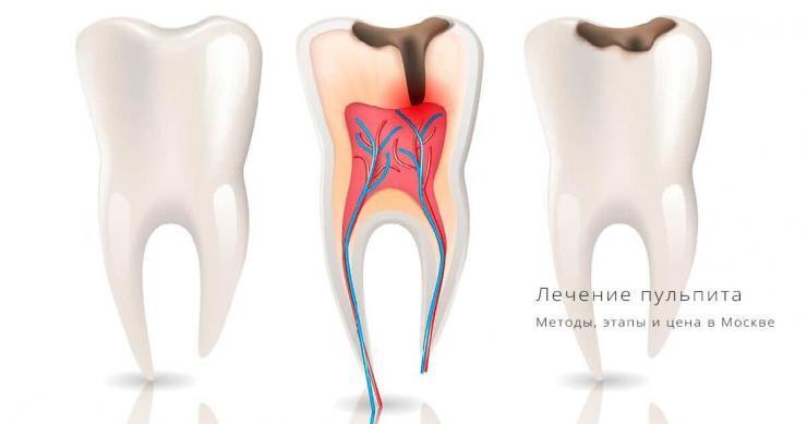 лечение пульпита зуба