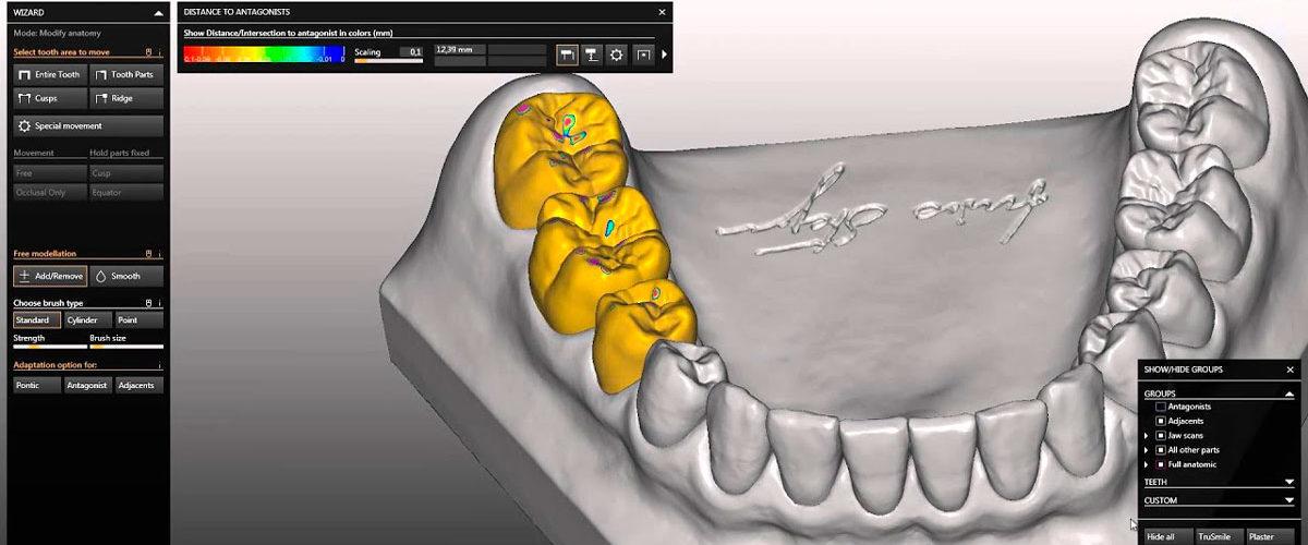 Моделирование зубов
