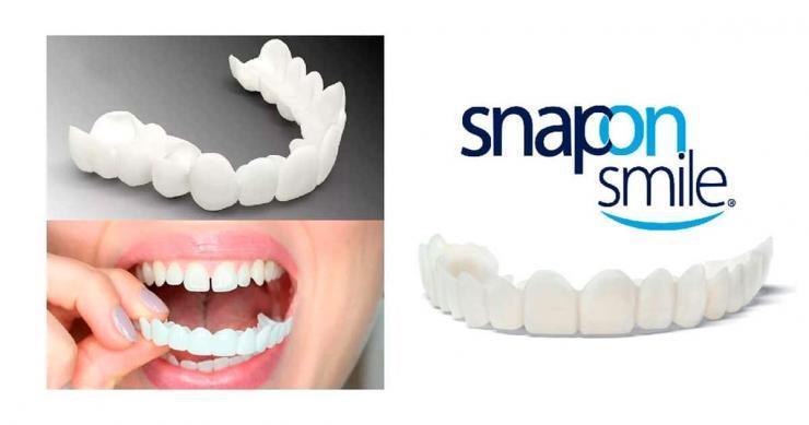 Протезирование Snap-on-smile