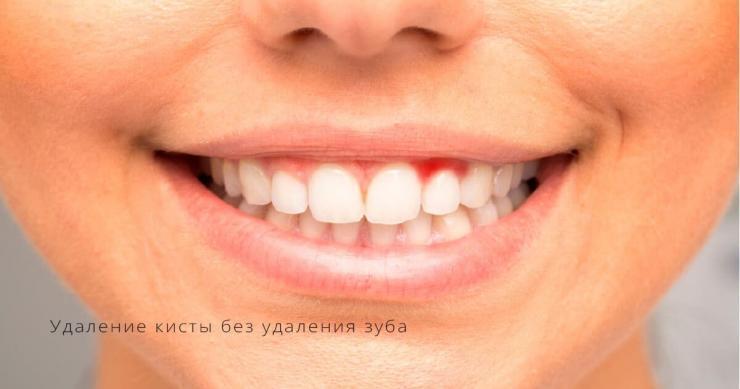 удаление кисты зуба без удаления зуба