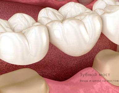 зубной мост цена москва