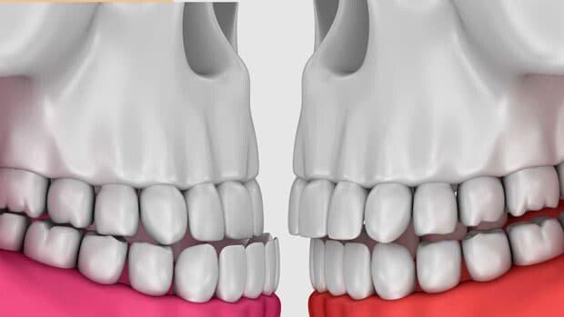 что такое нейромышечная стоматология (НМС)