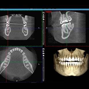нейромышечный стоматолог в москве